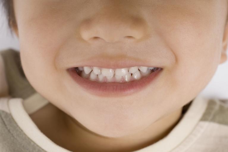 お子様の虫歯を早期発見するためのポイント!